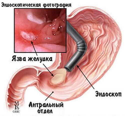 IBS és krónikus Prostatitis kismedencei fájdalom szindróma